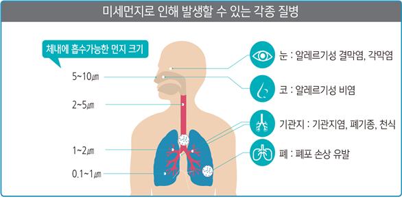 미세먼지로 인해 발생할 수 있는 각종 질병