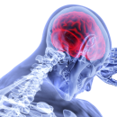 초미세먼지 치매, 알츠하이머, 자폐증, 뇌졸중 등 뇌질환 발생 원인
